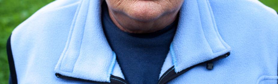 COPD, elderly woman