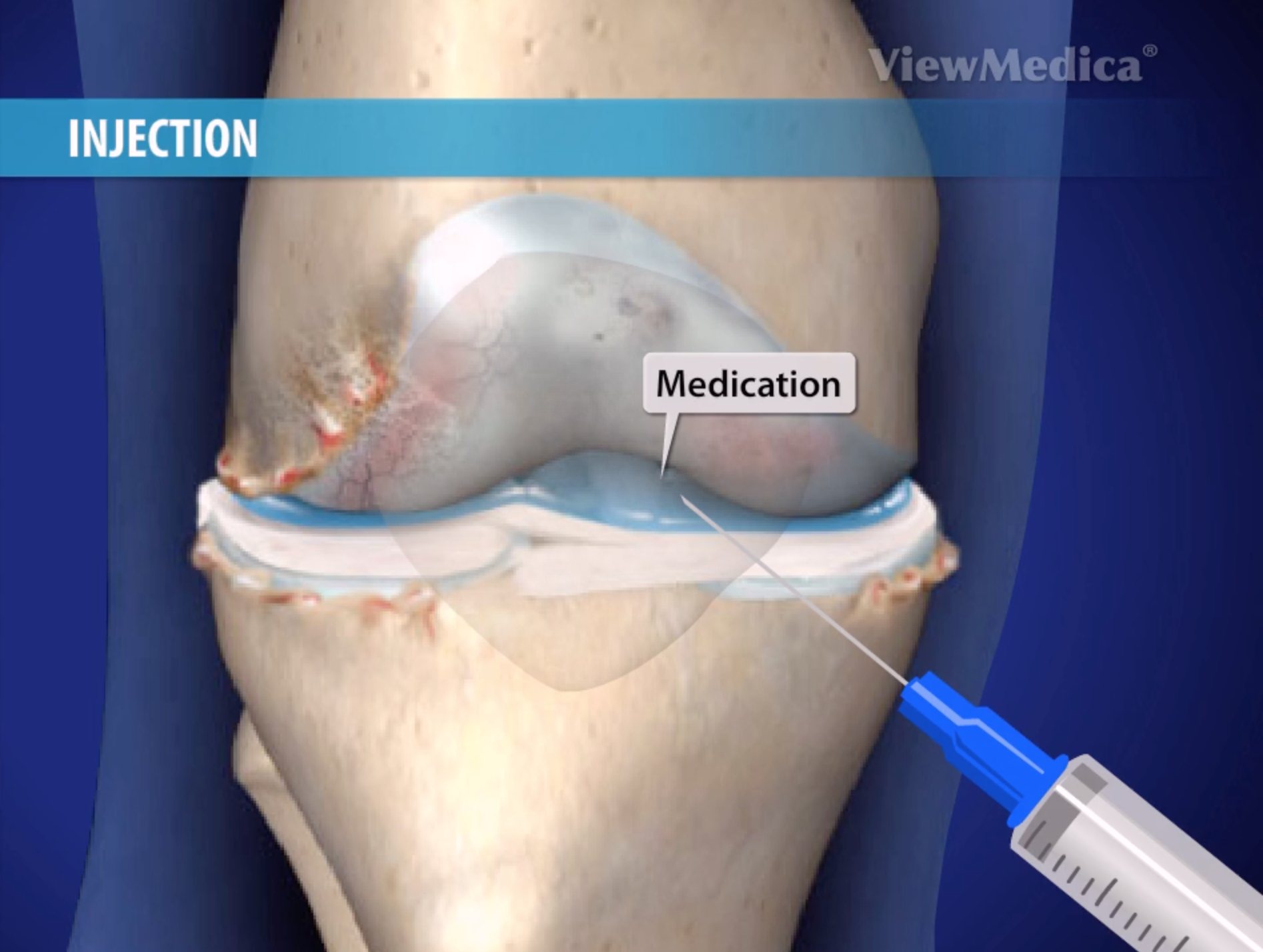 knee joint steroid injection procedure